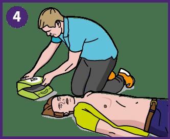 4. Hae defibrillaattori